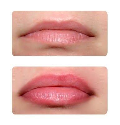 Стоимость процедуры увеличения губ