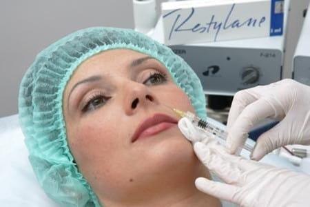Коррекция носогубных складок препаратом «Ювидерм»
