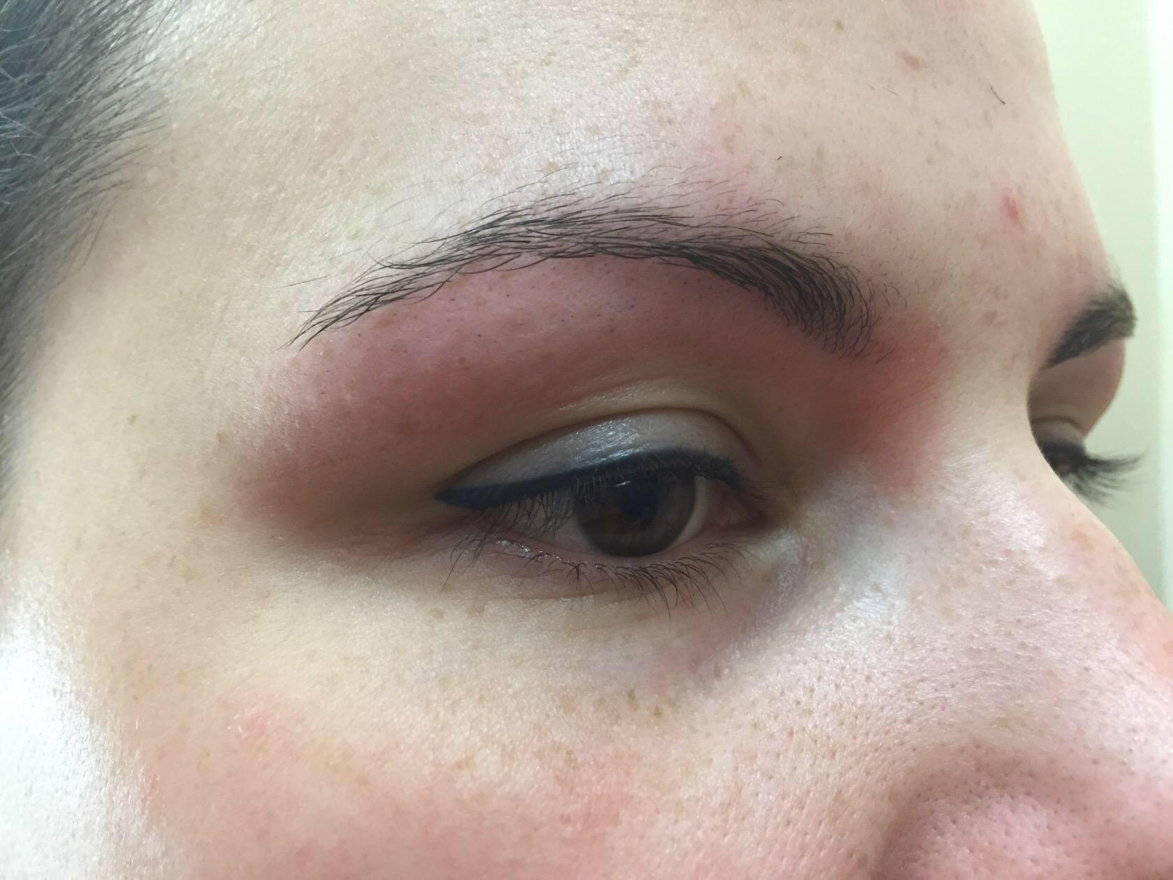 перманентный макияж ацикловир