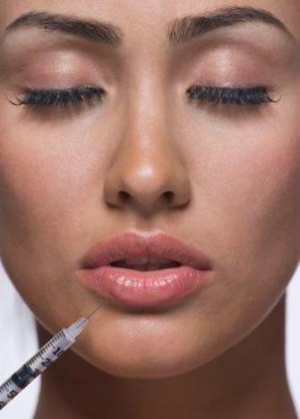 Процедура коррекции губ ботоксом