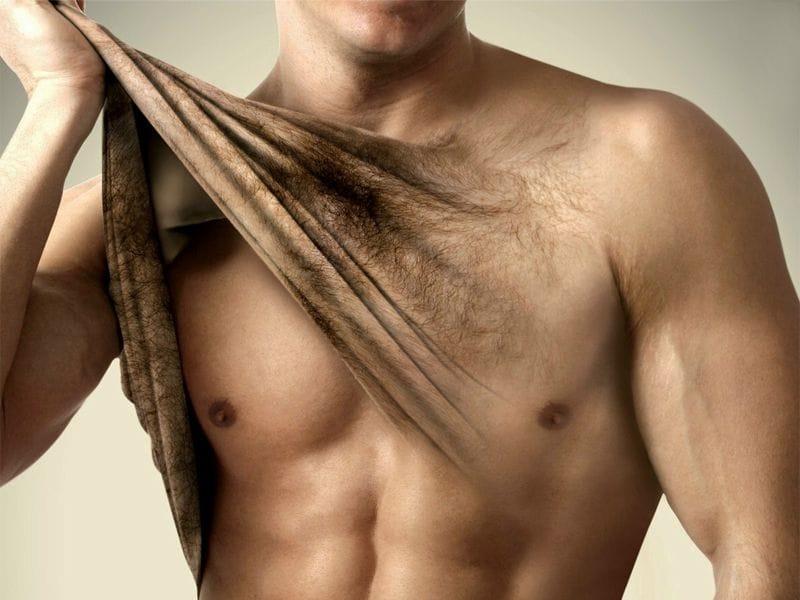 «Удаление волос на теле